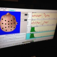 BTNE brainwaves NFB.JPG